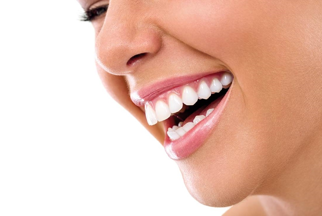 minisonrisas-tratamiento-blanqueamiento-dental